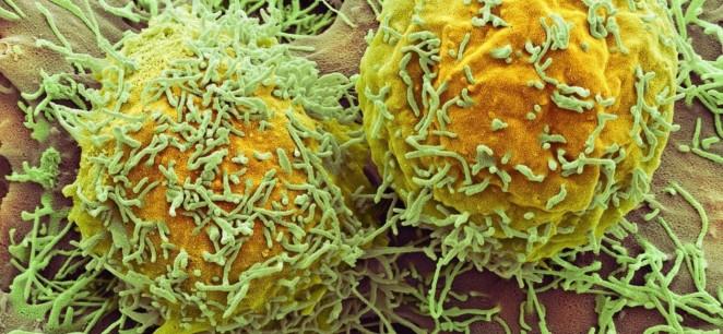 cancer-uranio-empobrecido